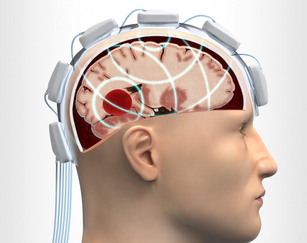 En mikrovågshjälm placeras på patientens huvud och undersöker hjärnvävnaden med hjälp av mikrovågor. Illustration: Boid.