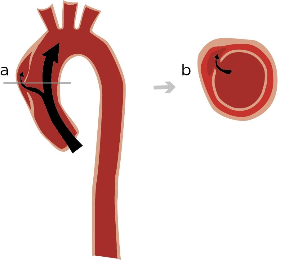 Mutation Kan Orsaka Aortabristning I Bröstkorgen Forskningse