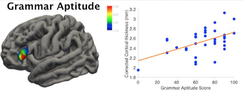 vänster hjärnhalva skada