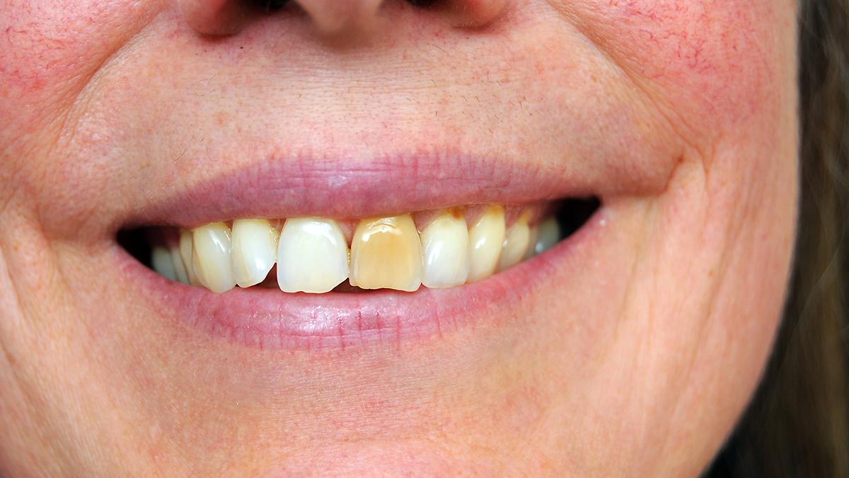 hål i tänder