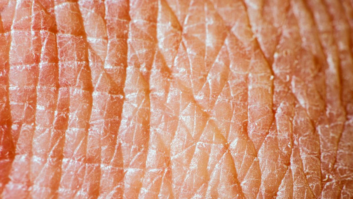 bakterier på huden