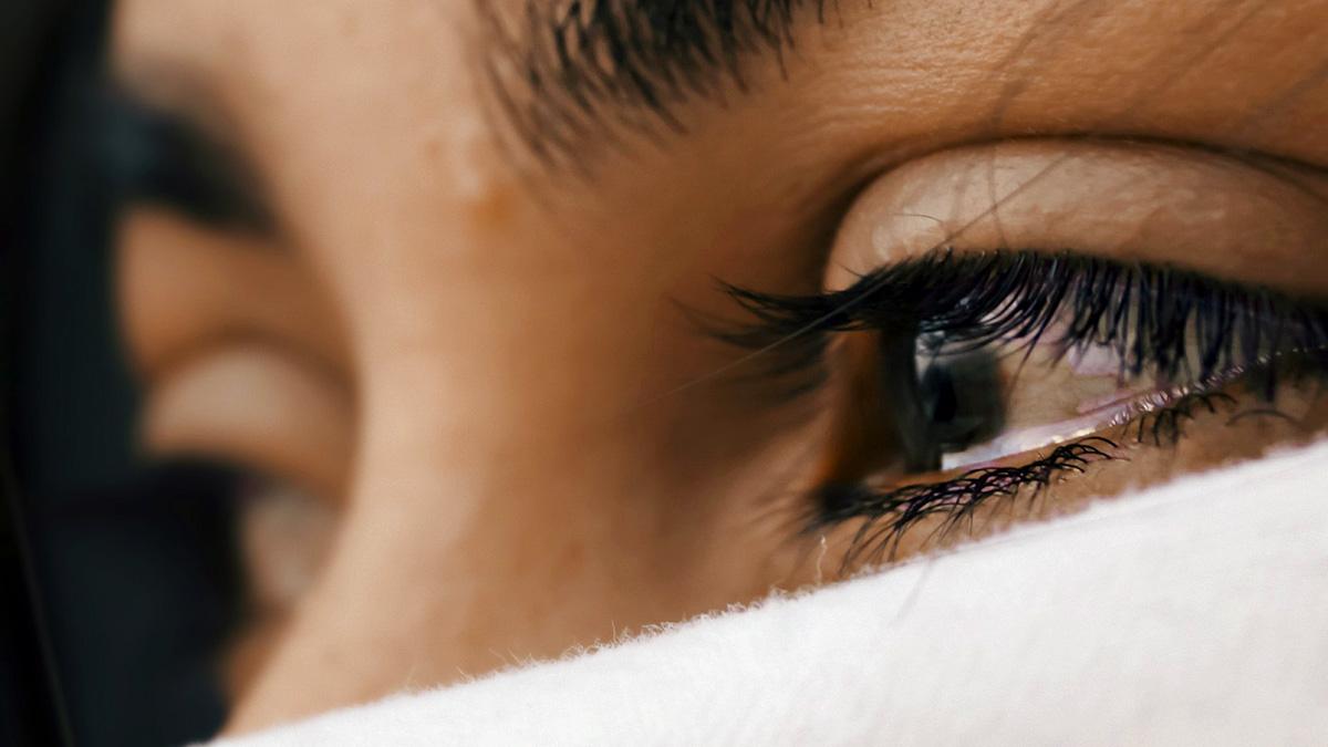 Fler får smärta i ansiktet – kvinnor drabbas hårdast