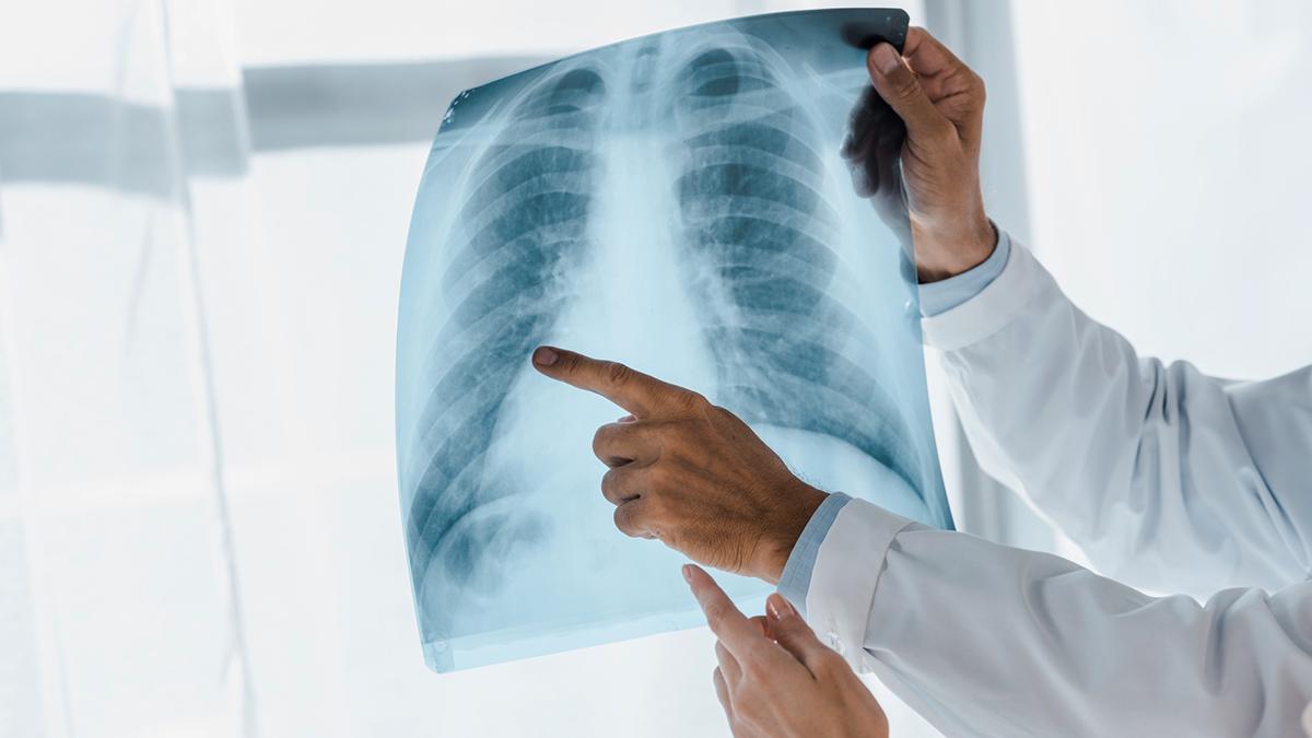 kan lunginflammation smitta