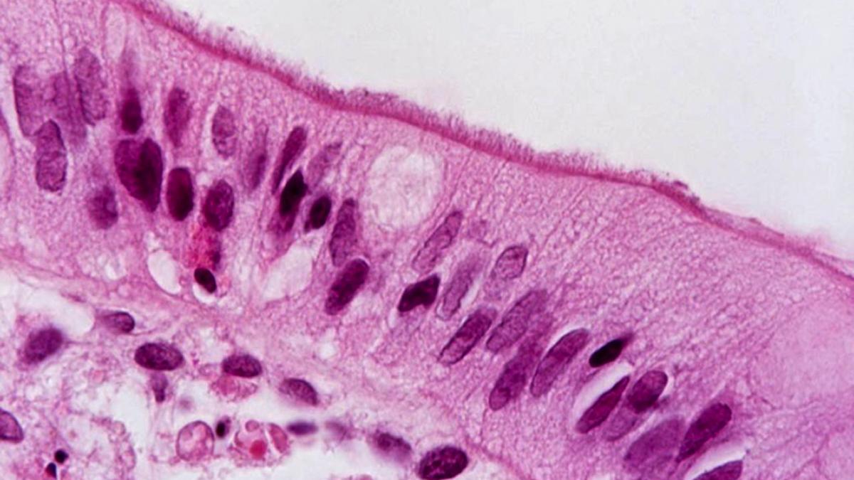 Specifik bakterie i tarmen kopplad till irritabel tarm (IBS)
