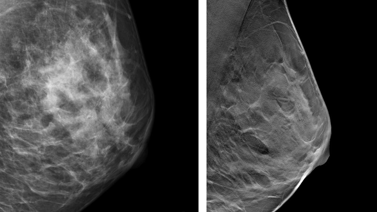 röntgenbild på bröst från mammografi