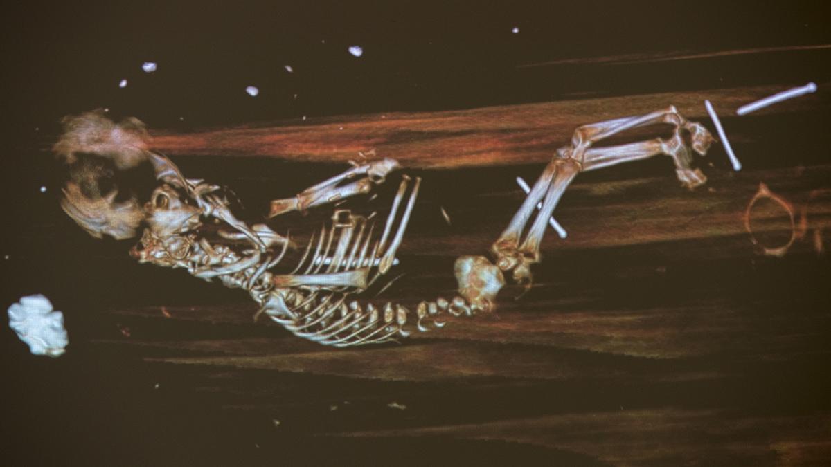 Skelett av foster.